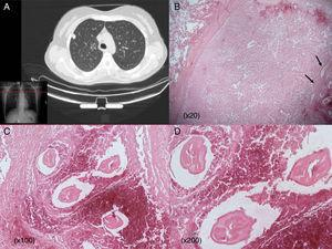 (A) Chest CT scan showing an apparently malignant solitary nodule in the right upper lobe abutting the pleura. (B) Well-defined necrotic pulmonary nodule invading normal lung parenchyma. Worms in necrotic tissue (arrows) (20×). (C and D) Typical dirofilariasis worms (D. immitis) embedded in necrotic material (C: hematoxylin and eosin staining 100×; D: hematoxylin and eosin staining 200×).