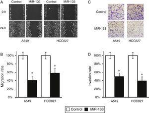 MiR-133 expression inhibits migration and invasion of lung cancer cells. (A) Wound-healing assay for A549 and HCC827 cell lines, after transfection with either miRNA negative control or miR-133. (B) The migration distances relative to control in wound-healing assay were measured at 24h after being wounded. (C) Cell invasion assay for A549 and HCC827 cell lines, after transfection with either miRNA negative control or miR-133. (D) The invaded cell numbers relative to control were quantified 24h after cells were seeded. Values were mean±SEM of three independent experiments. *P<.05 to respective control.
