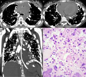 Axial computed tomography images at the level of the bronchial bifurcation (A) and lower lobes (B), and a coronal reformatted image (C) showing several calcified nodules in the subpleural regions and along fissures. Note also mediastinal lymph node calcifications and pericardial effusion. (D) Histological section showing proliferation of neoplastic cells with bone tissue formation. Note also nuclear atypia (hyperchromasia and karyomegaly) (hematoxylin and eosin stain, ×400).
