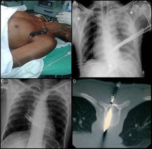 (A) Knife impaled in the left thorax. (B) Chest radiograph. The blade of the knife can be seen above the cardiac silhouette and the left hemothorax. (C) Knife impaled in the posterior thorax. No hemothorax or pneumothorax seen on portable chest radiograph. (D) CT of spine in prone position.