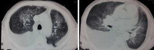 Chest CT of patient at time of presentation.