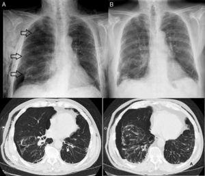 (A) Chest radiograph and chest computed tomography before flexible fiberoptic bronchoscopy. (B) Chest radiograph after endoscopic treatment.
