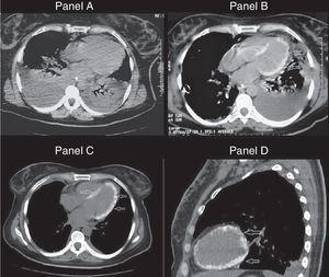 Panel A. Tomography performed on admission showing bilateral pleural effusion and pulmonary consolidation. Panel B. Similar tomography slice obtained 7 days later, revealing calcified ventricular myocardium. Panels C and D. Extensive calcification throughout the left ventricular myocardium (day 30).