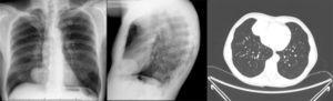Thymoma in the right cardiophrenic angle.