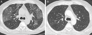 (A) Chest high-resolution computed tomography showing bilateral ground glass opacities and interlobular septal thickening. (B) Chest high-resolution computed tomography after corticosteroid treatment, showing resolution of the pulmonary lesions.