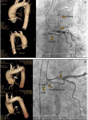 (A) Coronary artery fistula from the LCT to the left pulmonary artery. CT and angiography. (B) Percutaneous closure of coronary artery fistula using coils. CT and angiography.
