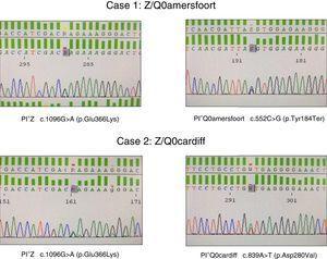 Identification of PI*Q0Amersfoort and PI*Q0cardiff null alleles.