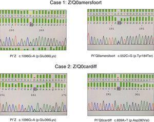 Identification of PI*Q0Amersfoort and PI*Q0cardiff null alleles.