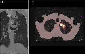 (A) Coronal CT with lung window: cavitating mass with thick irregular wall, 18mm in the left upper lobe extending toward the mediastinum. (B) Axial PET-CT: mass showing high uptake of fluorodeoxyglucose, with a standard uptake value of 28.38 units.