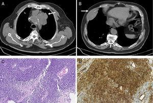 (A) Chest CT showing a pre-vascular solid mass with 9cm in the superior mediastinum (white arrow). (B) Chest CT showing a lesion in the anterior portion of the 7th right rib with 7.9cm and bone destruction (white arrow). (C) Photomicrograph illustrating small-sized round cells with scanty cytoplasm. Stain: hematoxylin and eosin (HE); magnification: 20í (D) Immunohistochemistry photomicrograph showing tumor cells positive for CD99; magnification: 20í.