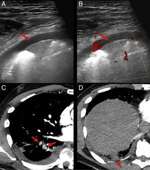 Chest ultrasound and computed tomography showing a filling defect in the segmental arteries of the RLL, and pleural-based, triangular subpleural consolidation, diagnosed as pulmonary thromboembolism with pulmonary infarction.