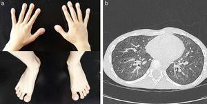 (a) Digital clubbing in fingers and toes. (b) Follow-up lung CT showing progression of the ground glass pattern and appearance of new cystic lesions.