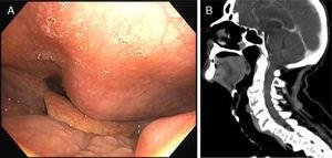 (A) A tumefaction in the posterior wall of hypopharynx and inferior oropharynx visualized by fiberoptic bronchoscopy. (B) Cervical computed tomography (sagittal) showing large cervical anterior osteophytes.