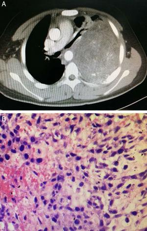 (A) Chest CT showed the heterogeneous mass in the left thoracic cavity. The hyperdense areas are calcification and irregular ossification. Several non-enhanced hypodense areas considered to be necrosis or hemorrhage. (B) Histopathology confirmed the diagnosis of mesenchymal chondrosarcoma (H&E ×200).