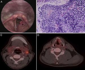 Indirect laryngoscopy (A) shows submucosal bulging mass (asterisk) over the left false cord. Photomicrograph (H&E, ×400) (B) shows small cells with hyperchromatic nuclei and scant cytoplasm. Nuclear moulding and crush artefact are present. PET/CT (C, D) showed increased 18F-FDG uptake in the left supraglottis (SUVmax=2.3) and left neck lymph nodes (SUVmax=4.0).