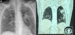 Chest X ray showing abscessus pneumonia (A)&#59; HRCT demonstrated extensive pulmonary abscessus over both the lungs (B).