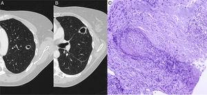 (A) Chest CT showing a cavitating nodular lesion in the left upper lobe and (B) another in the upper segment of the lingula. (C) Staining of elastic fibers to highlight the irregular destruction of the arterial wall by the inflammatory process. Necrosis is seen in the upper right corner. Orcein 200×.
