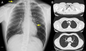 (A) Chest X-ray, showing (arrows) signs of subcutaneous emphysema the right laterocervical region and an area of left paracardiac hyperlucency, suggestive of pneumomediastinum. (B) Chest CT (parenchymal window) showing extensive pneumomediastinum in several regions, dissecting the mediastinal structures.