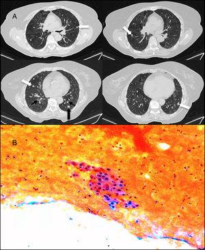 (A) Computed axial tomography slices in expiration, without the administration of intravenous contrast: multiple bilateral solid pulmonary nodules (white arrows), diffuse thickening of the bronchial walls (thin black arrows), associated with a mosaic attenuation pattern, suggestive of air trapping (asterisks). The nodule in the left lower lobe (thick black arrow) is the nodule that was aspirated. (B) Cytology of fine-needle aspiration-biopsy of one of the nodules, showing a group of finely granular cytoplasmic cells with slightly irregular nuclei and punctiform chromatin on a hematic background.