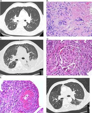 (A) Chest high-resolution computed tomography (HRCT). No evidence of disease or pleural effusion observed in middle and lower fields. (B) Lung biopsy. Granulomatous inflammation with extensive areas of necrosis and multinucleated Langhans giant cells. (C) Chest HRCT. Diffuse increase of pulmonary radiodensity, mainly ground glass opacities with moderate left loculated pleural effusion, and a fissural component, interpreted as diffuse alveolar hemorrhage. (D) Renal biopsy. Renal glomerulus with area of focal necrosis and karyorrhexis. (E) Renal biopsy with fibrinoid necrosis of the small arteries affecting more than 50% of the circumference, associated with transmural inflammation. (F) Chest HRCT. Reduction of pleural effusion and slight improvement of the ground glass opacities.