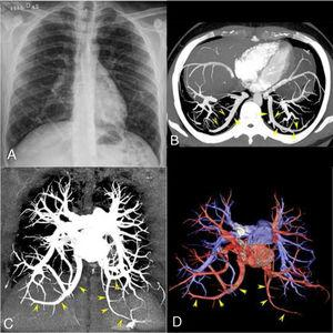 Posteroanterior chest radiograph (A) showing bilateral anomalous curvilinear vessels in the lower pulmonary regions. Enhanced chest computed tomography (CT) examination with axial (B) and coronal (C) maximum intensity projection imaging, which demonstrated bilateral pulmonary veins with anomalous routes in the lower pulmonary regions (yellow arrowheads), but draining normally into the left atrium. Coronal volume-rendering 3D reconstruction (D) shows the anomalous veins (red) and normal pulmonary arteries (blue).