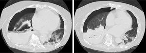 Transversal CT slices of the chest performed on day 23 of admission, showing right hydropneumotorax, right lower lobe atelectasis and areas of consolidation, some cavitary, mainly in the right lung base. Cavitary pulmonary nodules and ground-glass opacities adjacent to the area of consolidation can be seen in the left lower lobe.