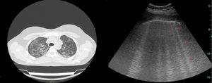 Bilateral ground glass densities on HRCT and CTAs detected using thoracic USG in a patient with ILD (CTAs are indicated by a red arrow on the left).