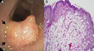(A) Flexible tracheobronchoscopy showing a well defined, yellowish, smooth, lobulated, broad-based tumour rising from the mucosal layer (arrows) of the anterior tracheal wall. (B) Microscopic image of the resected specimen showing a not encapsulated tumour localized in the subepithelial layer, composed of mature adipocytes without cellular atypia (hematoxylin-eosin).