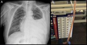 (A) Rifampicin-stained pleural fluid. (B) Chest X-ray showing a pleural effusion occupying the lower two thirds of the left hemithorax.