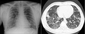 On the left, chest X-ray with bilateral reticular cotton–wool infiltrates. On the right, CT-angiogram (parenchymal window) showing alveolar and ground glass opacities in both lungs.