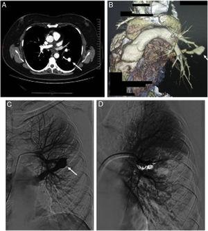 Thoracic CT scan and angiogram images of the pulmonary arteriovenous malformation. (A) The axial thoracic CT image (mediastinal window) shows an aneurysmal sac (arrow), with a connection to a sub-segmental branch of the upper branch of the pulmonary artery. (B) 3D-volume rendering CT image that shows an aneurysmal sac with a connection to a sub-segmental branch of the upper branch of the pulmonary artery, and at the lower end to a pulmonary vein (*). (C) Selective left pulmonary artery branch angiogram showing the pulmonary arteriovenous malformation (arrow). (D) Postembolization pulmonary arteriogram with complete occlusion of the pulmonary arteriovenous malformation.