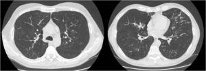 CT slices showing numerous areas of bronchiectasis in the pulmonary parenchyma.