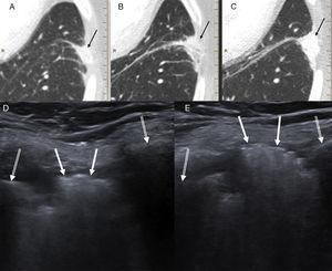(A–C) Series of follow-up CTs showing a left laterobasal peripheral pulmonary opacity with minor extension to the intercostal space gradually increasing in size and density (black arrows). (D) Chest ultrasound (Valsalva maneuver) showing a hyperechogenic lesion (white arrows) in the intercostal space between the lateral arches of the left seventh and eighth ribs (double white arrows), which mobilized during respiration. (E) Lesion protruding significantly toward the chest wall during the Valsalva maneuver. The patient was diagnosed with intercostal pulmonary hernia probably associated with thoracoscopy entry port for performing left upper lobectomy