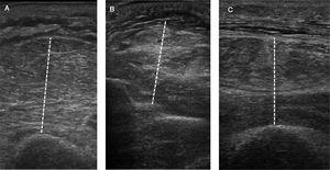 Peripheral muscle ultrasonography. Muscle thickness assessed in the flexor compartment of the arm (A), the flexor compartment of the forearm (B) and quadriceps (C).