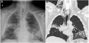 (A) Posteroanterior chest X-ray showing subcutaneous emphysema and persistent pulmonary consolidations in the RUL and LUL. (B) CT coronal reconstruction showing predominantly right-sided pneumomediastinum and subcutaneous emphysema in the cervical region.