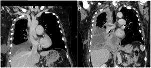 (A) A coronal CT image shows right sided-pleural effusion and ipsilateral fluid-containing cyst in the chest wall. (B) CT image shows partial resolution of the chest wall collection with increase in pleural thickening (particularly in the apex) as well as the pleural effusion. Note dense septations inside the fluid.