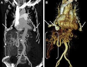 Coronal MIP image (A) and anterior view volume rendering 3D (B) thoracoabdominal CT angiographies showing multiple pulmonary (arrows) and hepatic arteriovenous malformations (between brackets).