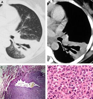 A 45-year-old woman with biopsy-proven BALT lymphoma. Axial computed tomography with the lung (A) and mediastinal (B) window settings showing an area of consolidation in the left lower lobe containing a markedly dilated bronchus. In (C), histopathological section demonstrating a dilated bronchiole with peribronchiolar infiltration of neoplastic cells (hematoxylin and eosin stain, magnification 40×). In (D), histological section showing proliferation of lymphoid cells (hematoxylin and eosin stain, magnification 400×).