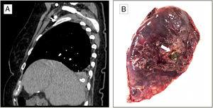 (A) Sagittal image of the CT scan that shows foreign body with calcium density located in the right lower lung. (B) Image of the pulmonary resection showing the gallstone (arrow).