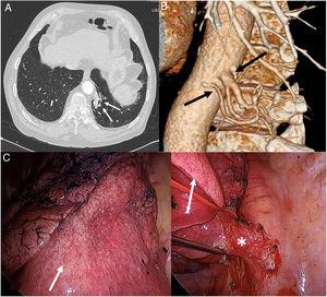 (A) Axial image of chest CT (pulmonary parenchymal window) showing a paramediastinal lesion in the basal segment of the left lower lobe (arrows). (B) Volumetric reconstruction of chest CT revealing the presence of 2 systemic arteries (arrows) that originate in the descending thoracic aorta and irrigate the pulmonary lesion, thus confirming the diagnosis of pulmonary sequestration. (C) Intraoperative image of: (1) pulmonary sequestration (white arrow) and (2) arterial vascularization (asterisk) of the pulmonary sequestration (white arrow).