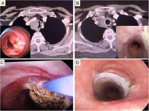 (A) Bronchoscopy and CT image of tracheal stenosis. (B) Outcome after treatment with corticosteroids and stenting, after 4 months. (C) Argon plasma coagulation, after biopsy. (D) Placement of Dumon® stent.