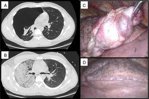 (A and B) CT showing complete pneumothorax and unilateral ground glass pattern. (C and D) Intraoperative findings: blebs.