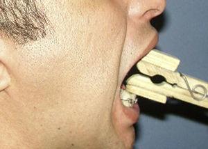 Fisioterapia para abertura bucal.