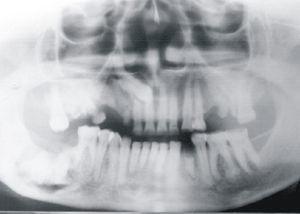 Imagem radiográfica da lesão localizada em corpo mandibular.