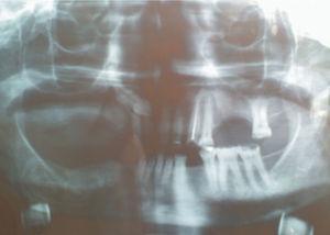 Aspeto radiográfico após 6 anos de acompanhamento. Notar neo-formação óssea e ausência de alterações.