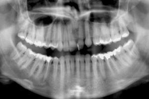 Ortopantomografia inicial.