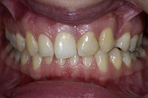 Fotografia inicial intra-oral frontal.