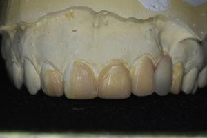 Fotografia do enceramento diagnóstico.