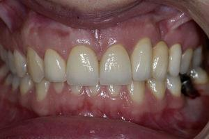 Fotografia final intra-oral frontal.