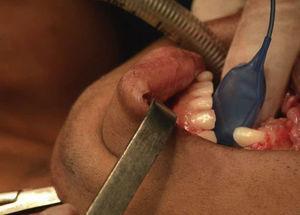 Intubação orotraqueal.